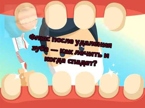 Флюс после удаления зуба — как лечить и когда спадет?