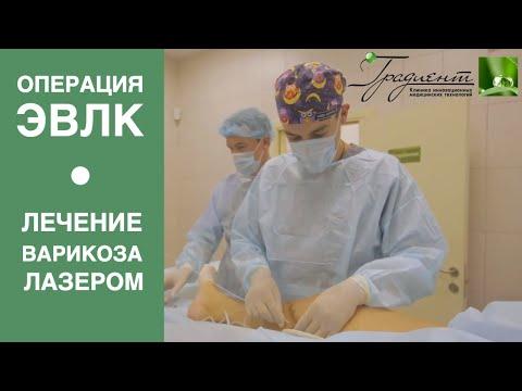 ОПЕРАЦИЯ ЭВЛК - удаление вен лазером, лечение варикоза