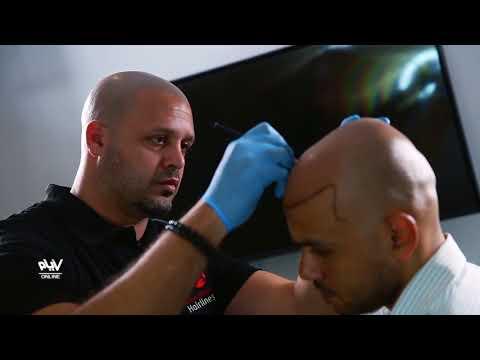الـ SMP تقنية جديدة يستخدمها سيف صدقى لعلاج مشكلات الشعر