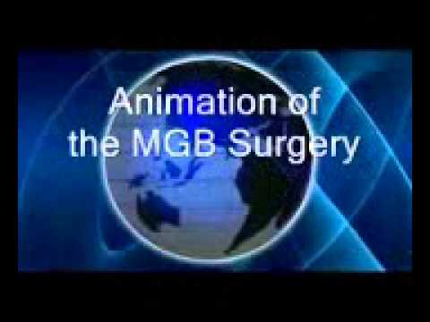 Video Mini-Gastric Bypass
