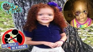 Justice For Ava Lynn Beated by Bully elementary school in Pascagoula, Mississippi
