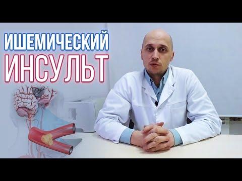 Ишемический инсульт (инфаркт головного мозга): причины, симптомы, лечение, восстановление и прогноз