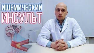 Ишемический инсульт (инфаркт головного мозга) причины, симптомы, лечение, восстановление и прогноз