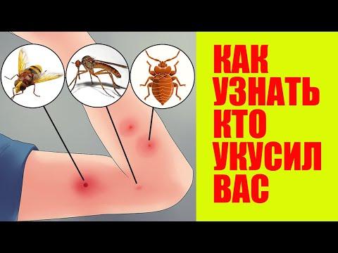Вопрос: Сколопендра это насекомое или животное, какие признаки?