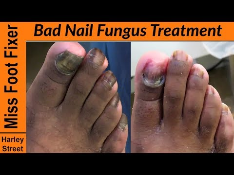 Bad toenail Fungus Treatment – How to cut fungal nails?