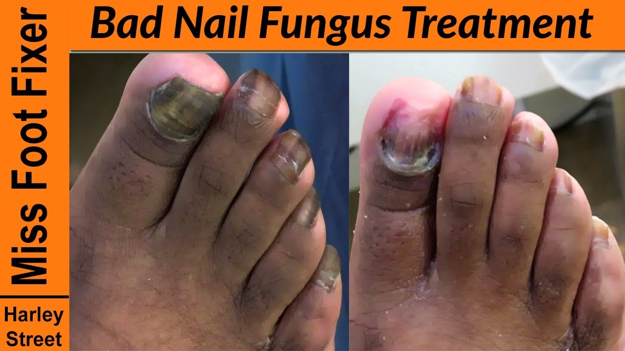 Bad toenail Fungus Treatment - How to cut fungal nails? - YouTube
