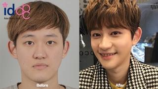 Korean Guy Undergoing Plastic Surgery At Id Hospital Korea!