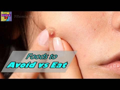 hqdefault - Do Different Types Of Food Cause Pimples