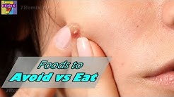 hqdefault - What Types Of Food Prevent Acne