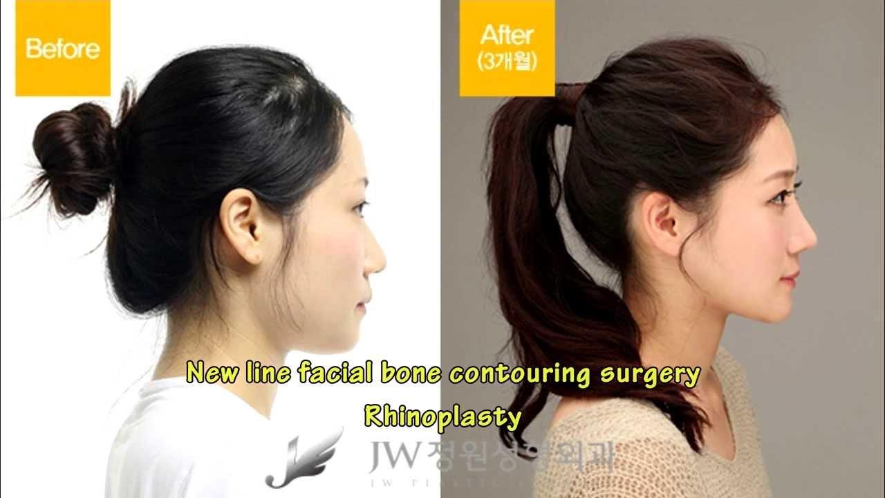 Opinion facial bone contouring well you!
