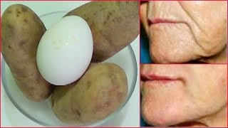 ANTI - AGING, LIFT TIGHTEN FIRM SKIN, TRANSFORM YOUR SKIN, LOOK YEARS YOUNGER Khichi Beauty thumbnail