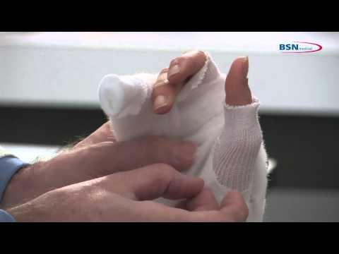 Plaster Of Paris Scaphoid Splint Application Doovi