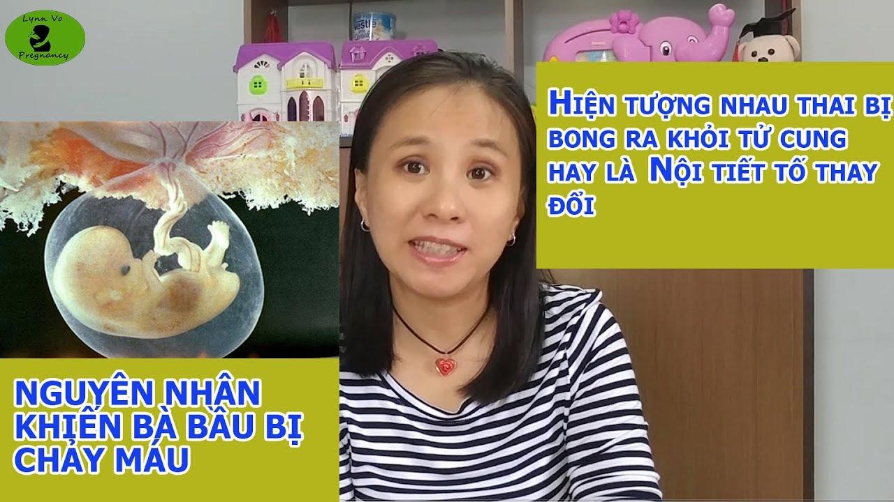 Chảy Máu Khi Mang Thai Đừng Nên Chủ Quan  Lynn Vo Pregnancy