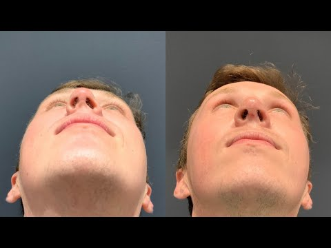 Patient Testimonial from Dr. Robb's most challenging Septorhinoplasty!