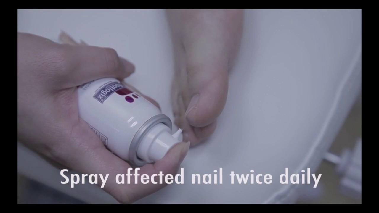 Footlogix 7T 7NT Nail Tincture Spray Tutorial