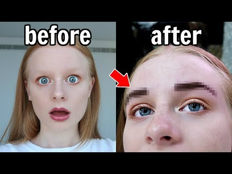 TEEN GETS EXTREME EYEBROW MAKEOVER!
