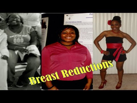 Breast Reductions: The Good, Bad & Ugly