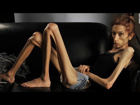 Нервная анорексия - симптомы и лечение.