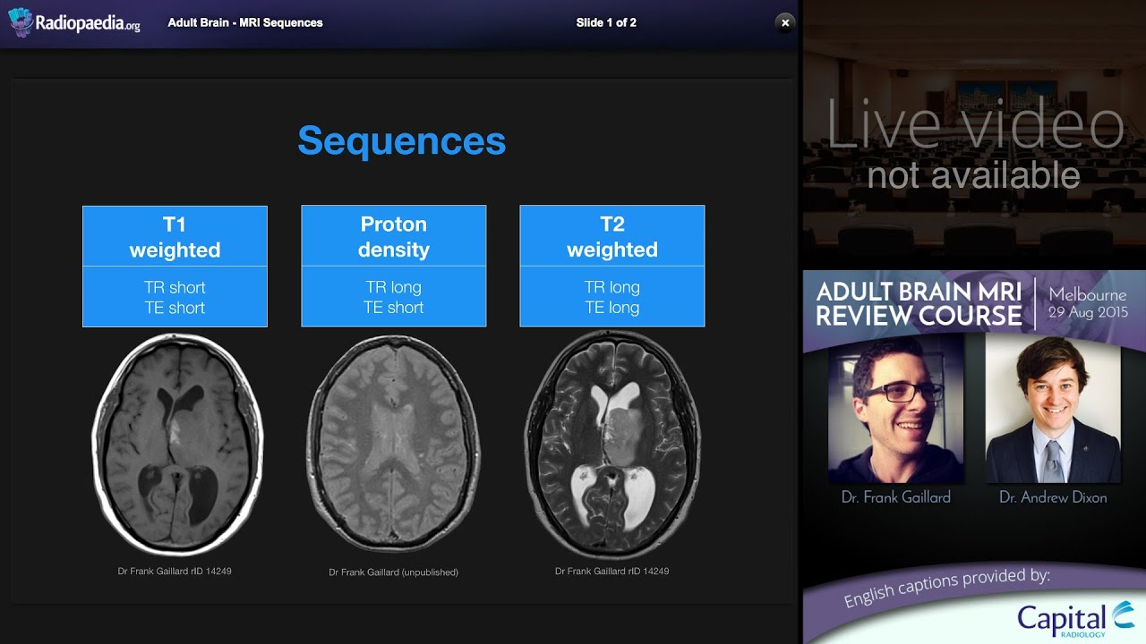 MRI Brain Sequences - radiology video tutorial - YouTube