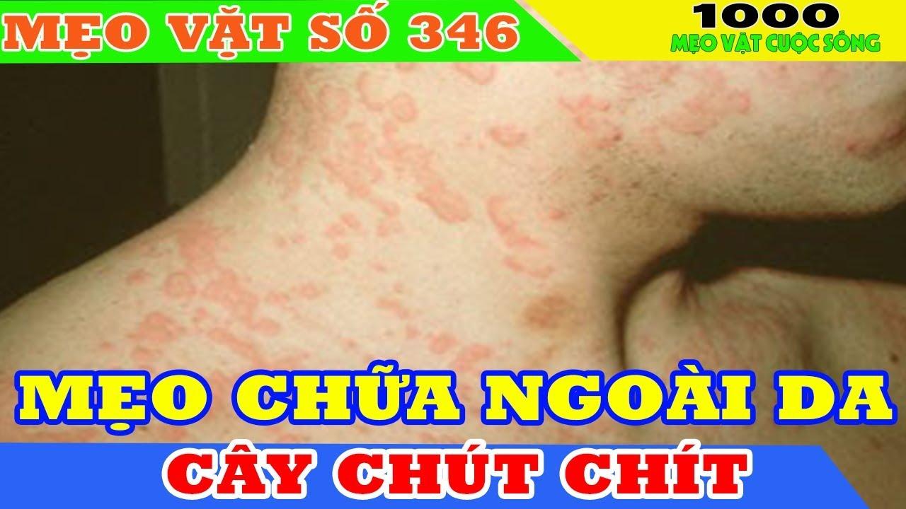 Mẹo chữa các loại bệnh ngoài da từ cây chút chít II Chữa viêm da cơ địa tại nhà