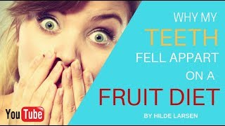 Why my teeth fell appart on a FRUIT diet.