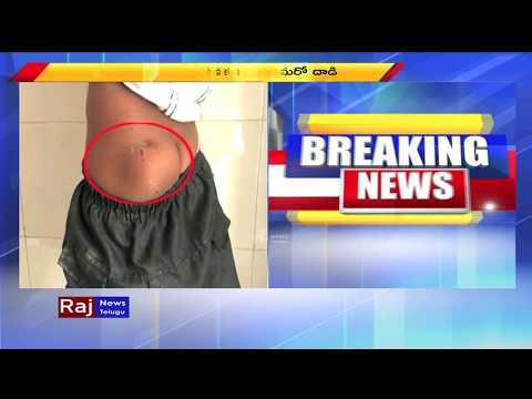 ఏపీలో కుక్కల స్వైరవిహారం Stray Dogs Attack 8 Children Anantapur Raj News Telugu