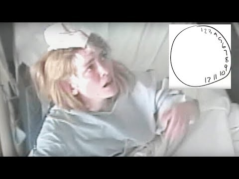 Thumbnail: Woman starts hallucinating, but her incorrect drawing of a clock helps doctors save her life