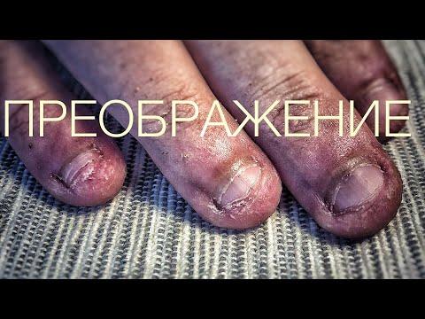 ногти грызуна. преображение. обкусанные ногти/часть 1