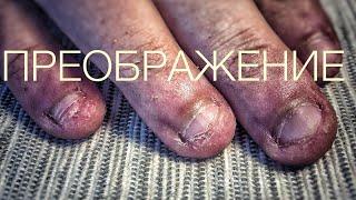 ногти грызуна преображение обкусанные ногти часть 1