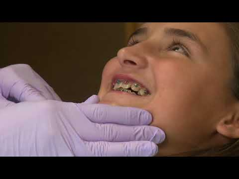 "Tupelo, MS - Dr. Richard Caron ""Your Dental Health"" At Home Orthodontics"