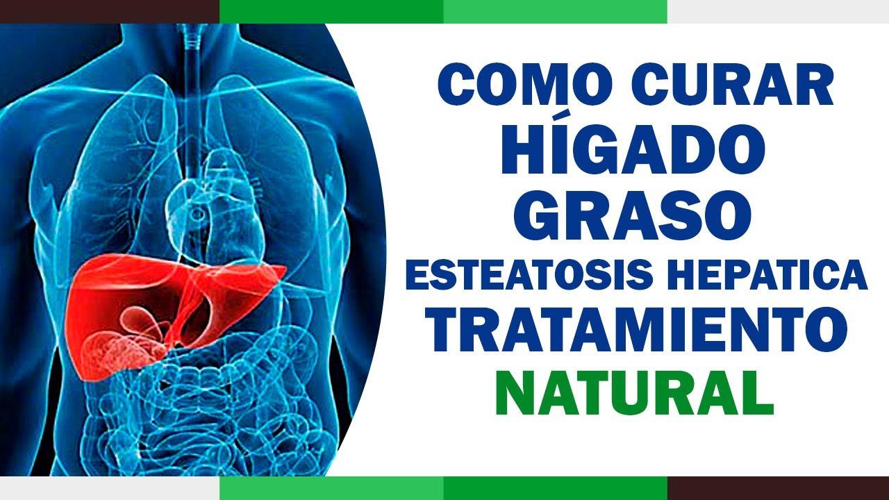 Esteatosis hepatica grado 2 tratamiento natural
