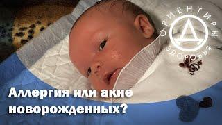Аллергия или акне новорожденных