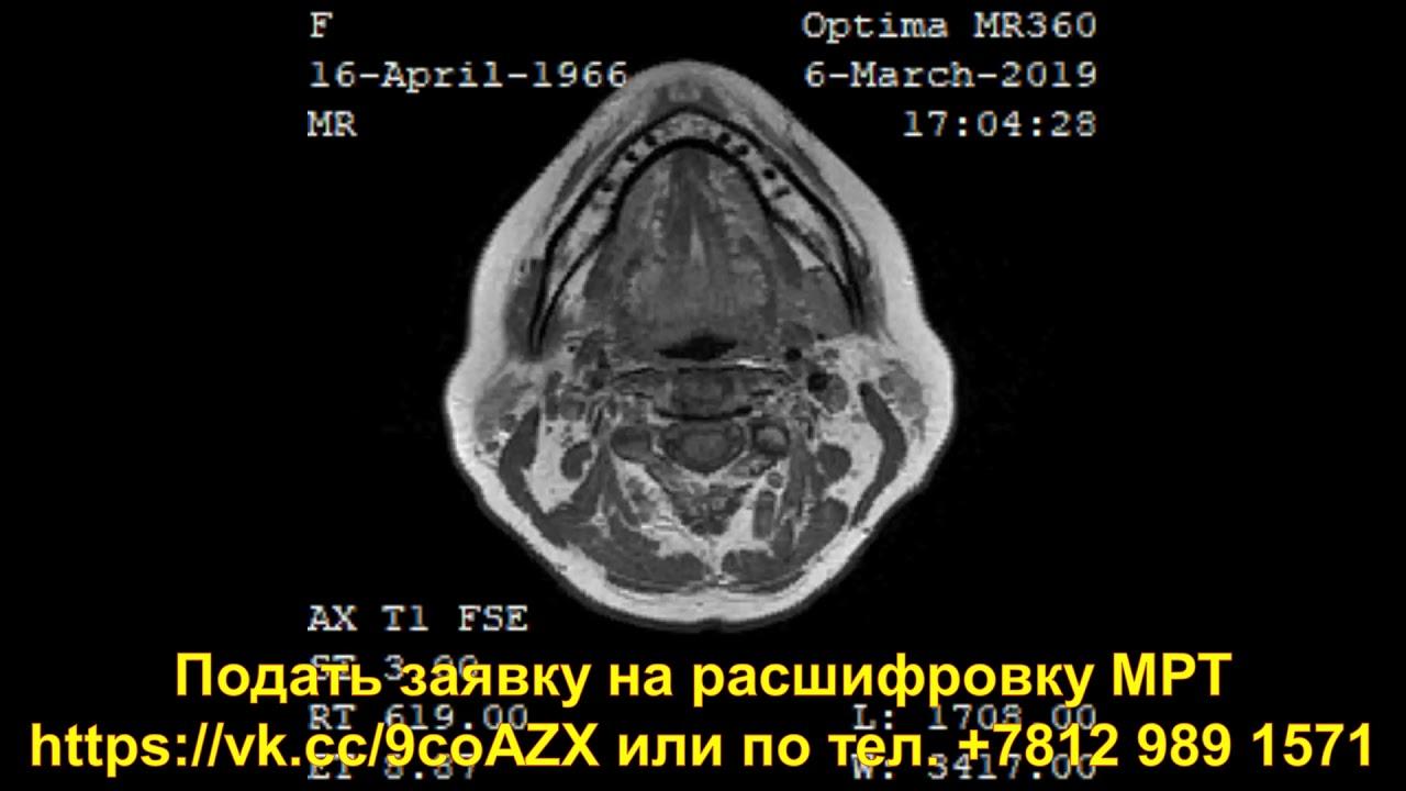 положение рк-11-кт pdf скачать