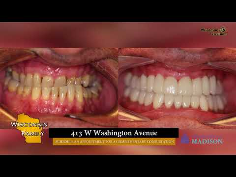 WI57 | Wisconsin Family | Dentistry for Madison | 04-13-18