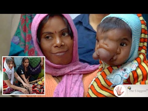 Girl With A Rare Genetic Condition Is Worshiped As Hindu God Reincarnation! ~ Body Bizarre!