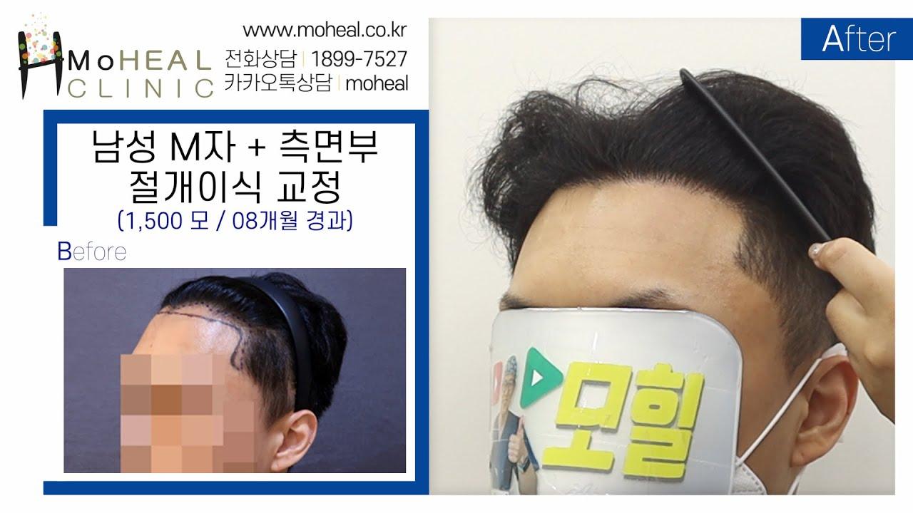 [모힐TV] 👨🏻🦲남성 모발이식 / 1,500모 M자 + 측면부 교정 12개월 경과💆🏻♂️