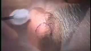 Exérèse d'un lipome de la nuque
