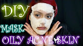 DIY - 3 Green tea Masks for Acne, Oily, or Dry Skin! Leaves skin .
