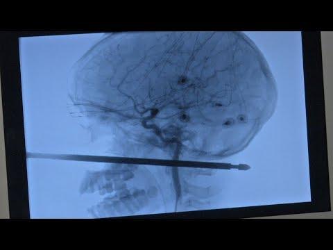 Un niño de 10 años sobrevive tras clavarse un pincho para carne en el cráneo
