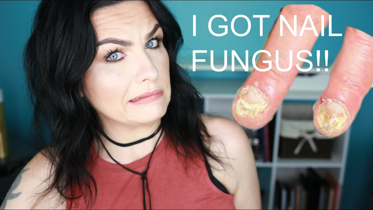 Storytime| I Got Nail Fungus From Acrylics! - YouTube