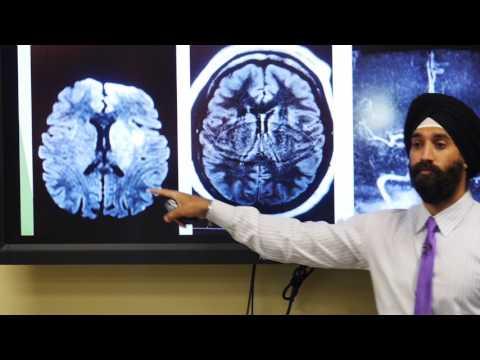 Ischemic Stroke - Arun Singh Chhabra, MD