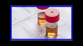 腎病醫生:尿蛋白怎樣算嚴重?消除尿蛋白的好辦法是什麼?