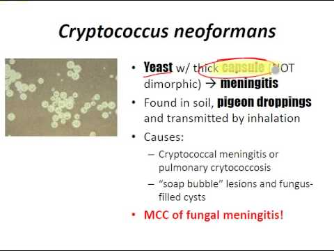 USMLE Review - Micro (Fungi)