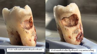wisdom teeth removal - surgery,extraction - 15,24