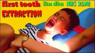Nhật Minh lần đầu đi nhổ răng | khóc hơi to tí thôi