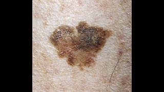 What is Actinic Keratosis? (Sun Exposure Patches) - Overview, Symptoms, Causes, Treatment, and Preve.