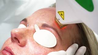 IPL Laser Treatment For Sun Spots