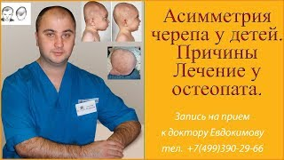 Асимметрия головы у ребенка. Причины.  Лечение остеопатией