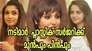 Actresses Before And After Plastic Surgery | Filmibeat Malayalam