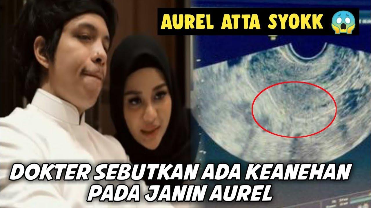 Download AUREL ATTA SYOK, SAAT DIKABARKAN SANG JANIN PUNYA KEANEHAN ❗❗